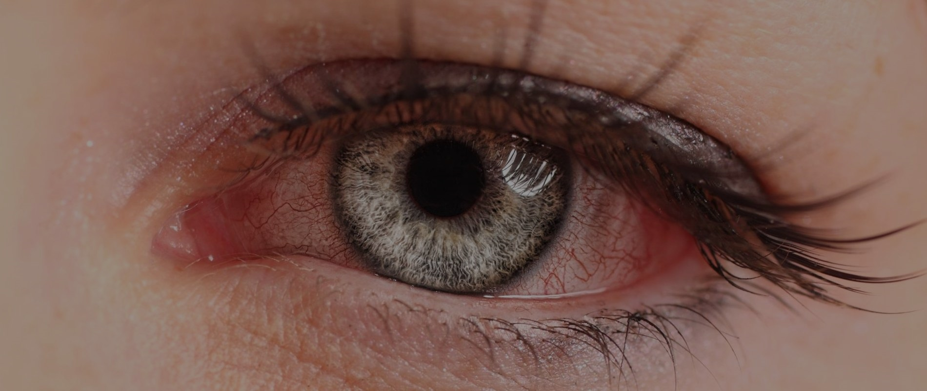 How severe are your dry eye symptoms?